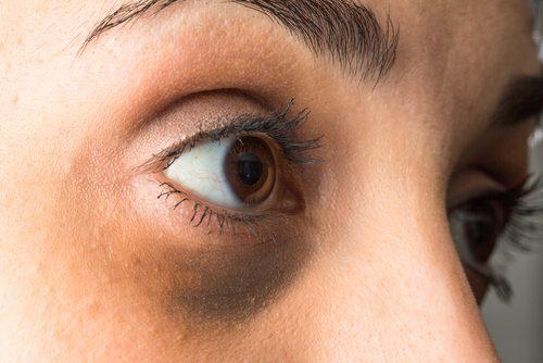 Tânără care are nevoie de tratamente pentru pungile de sub ochi