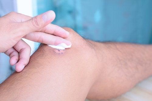 Rănile se vindecă mai încet când suferi de o carență de vitamina C