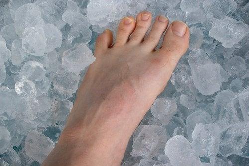 Gheața ameliorează tendinita