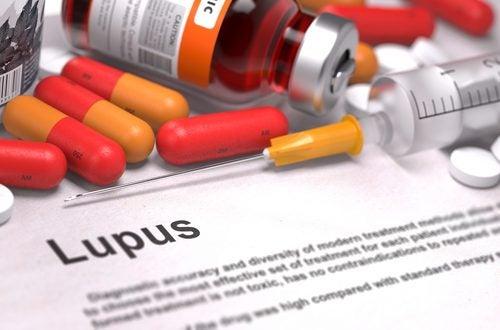 Informații despre boala Lupus și tratamentul necesar
