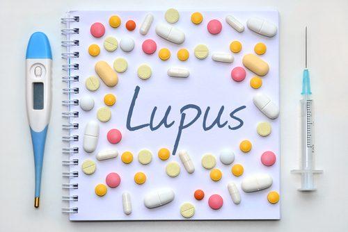 Lupusul poate fi greu de diagnosticat