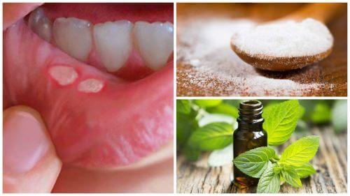 7 tratamente naturiste pentru aftele bucale