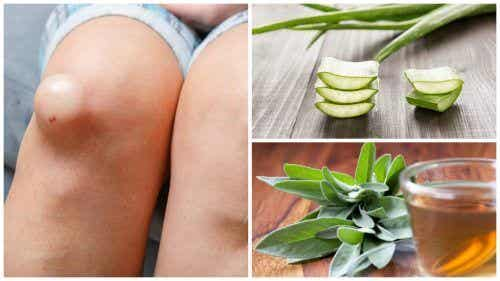 Umflăturile la genunchi: 5 remedii naturale