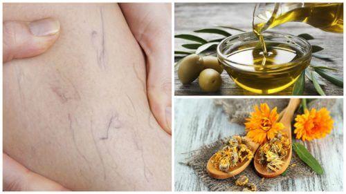 Previne apariția varicelor cu măsline și gălbenele