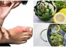 Acidul uric poate cauza numeroase probleme de sănătate