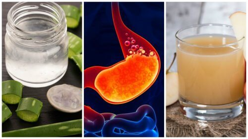 Arsurile la stomac pot fi tratate cu diverse remedii naturiste