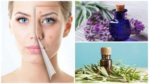 6 uleiuri esențiale care tratează acneea
