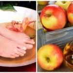 Vene varicose de oțet de mere