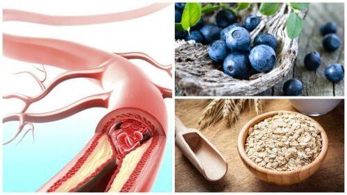 9 alimente care susțin sănătatea arterială