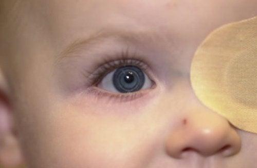 Și bebelușii pot avea cataractă