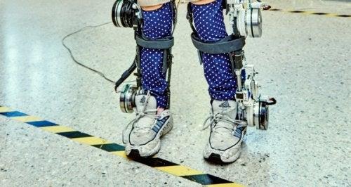 Acest exoschelet pentru copiii paraplegici este foarte costisitor