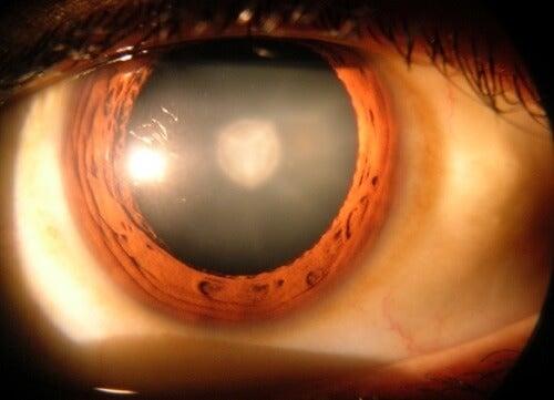 8 informații importante despre cataractă