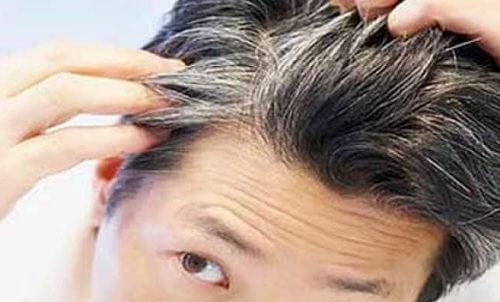 Poți preveni albirea părului cu 6 vitamine și alimente
