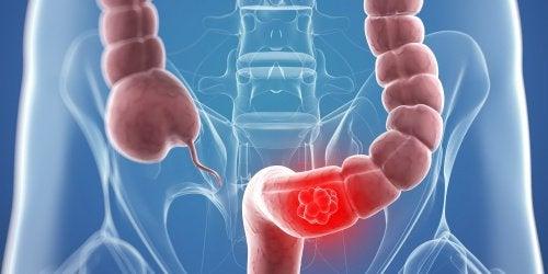 9 remedii naturale pentru cancerul de colon