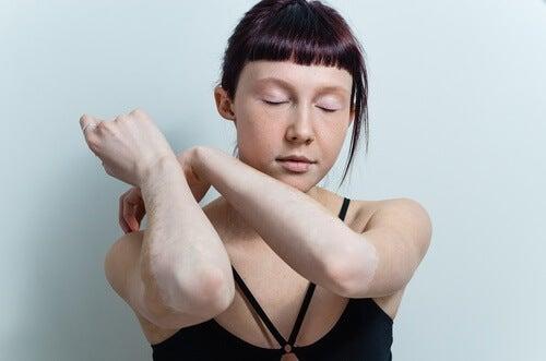 Există remedii naturale pentru vitiligo pe bază de lămâie