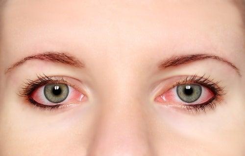 Simptome ale stresului vizual precum conjunctivita sunt deranjante