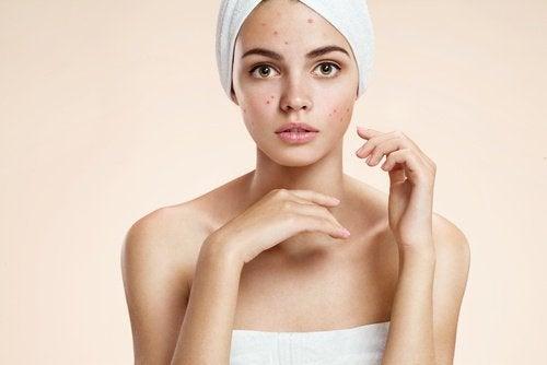 Nevoia de tratamente interne pentru acnee care curăță organismul