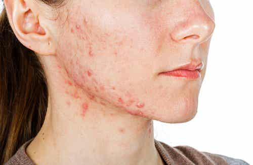 6 tratamente interne pentru acnee
