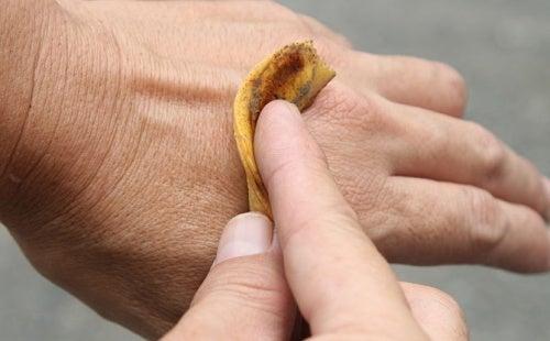 Utilizări ale cojilor de banană ce vizează pielea