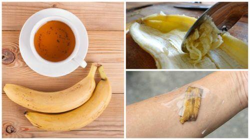 5 utilizări ale cojilor de banană în scop medicinal