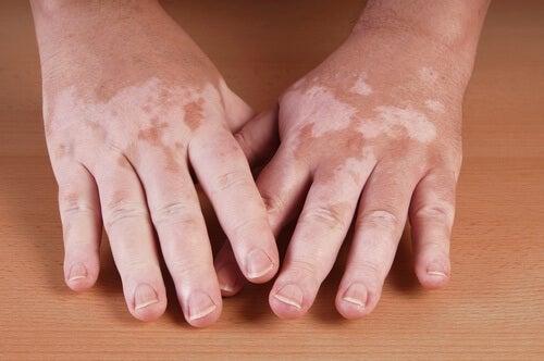 Vitiligo afectează persoane de toate vârstele