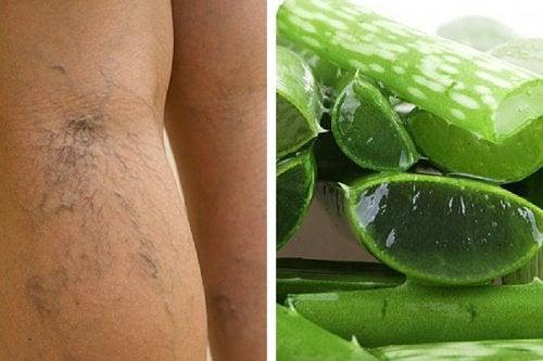 Aloe vera ajută la stimularea circulației la nivelul picioarelor