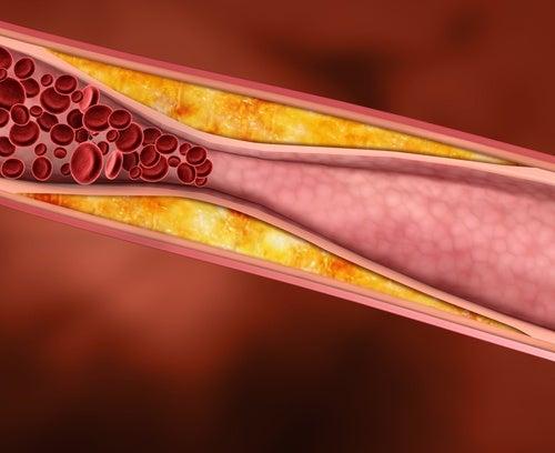 Colesterolul mărit este unul dintre principalele simptome ale hipotiroidismului