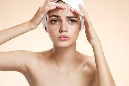Tratament de înfrumusețare un apă oxigenată pentru a trata acneea