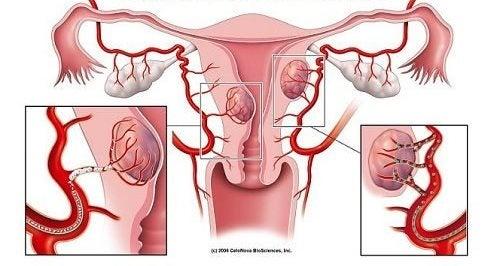 7 simptome ale fibromului uterin