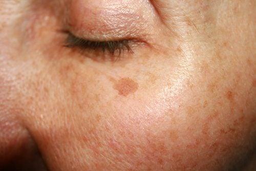 Evită expunerea excesivă la soare pentru prevenirea petelor de bătrânețe