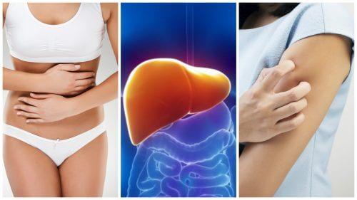 Supraîncărcarea cu toxine a ficatului – 8 simptome