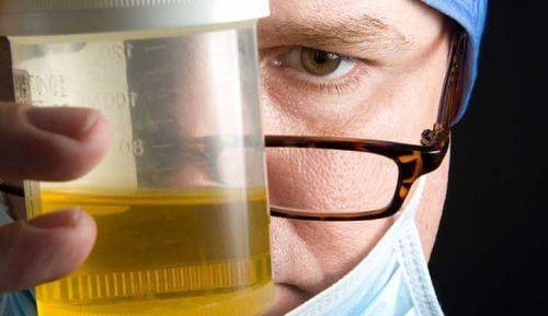 8 cauze ale urinei urât mirositoare