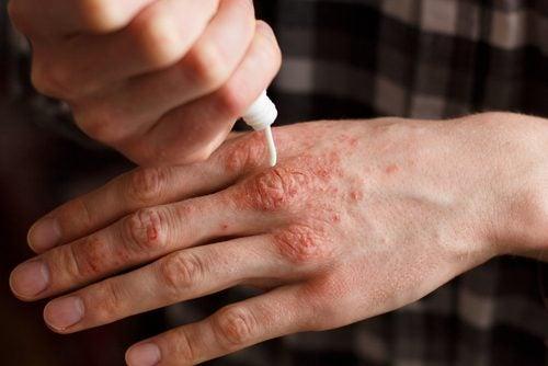 6 creme naturale pentru ameliorarea psoriazisului