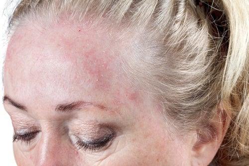 A dormi cu părul ud afectează pielea