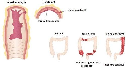 Moduri de a trata boala Crohn ce afectează intestinele