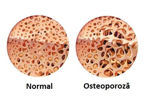 Moduri de a trata boala Crohn ce pot cauza reacții adverse