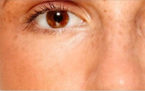 Pistruii sunt simptome ale sindromului ovarelor polichistice