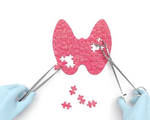 Cum afli dacă ai probleme cu glanda tiroidă