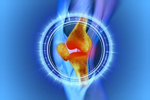 4 remedii împotriva durerii de genunchi