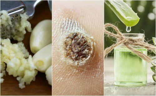5 remedii naturiste împotriva negilor