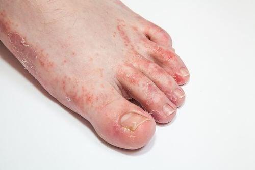3 remedii pentru ciuperca piciorului