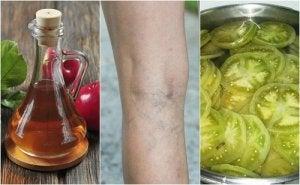 recenzii ale tratamentului oțetului de mere varicoză