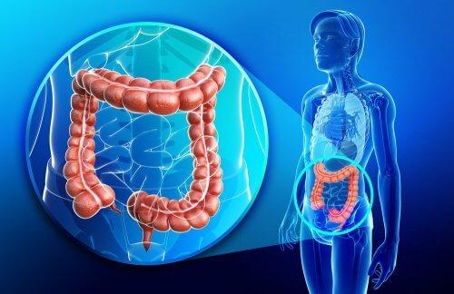 Sănătatea intestinelor poate fi afectată de mai mulți factori