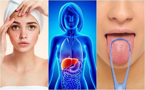7 semne că ficatul este plin de toxine