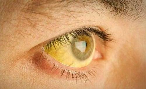 Supraîncărcarea cu toxine a ficatului cauzând icter