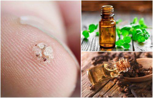 7 uleiuri esențiale care ajută la îndepărtarea negilor
