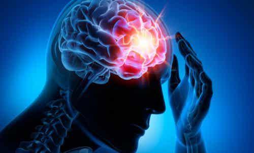 Top 4 cele mai frecvente boli cerebrovasculare