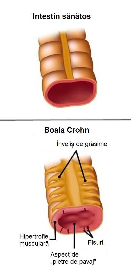 Informații despre boala Crohn și cum se manifestă ea