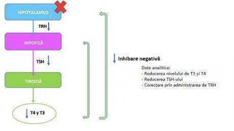 Hipertiroidism | formatiaoccident.ro