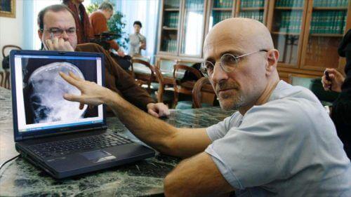 Primul transplant de cap realizat de neurochirurgul Sergio Canavero